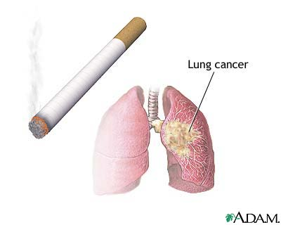 Smoking Effects on Your Health-9939_6747_5-jpg